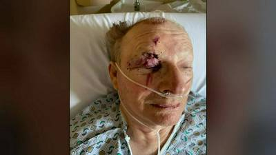 Road to recovery will be long for man who crashed on Pa. Turnpike, rescued from tree, daughter says